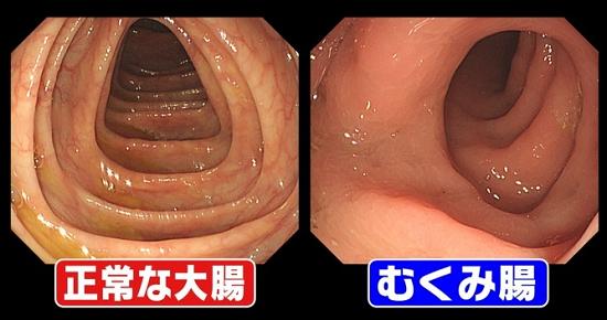 むくみ腸解消しょうがココアの作り方公開!ウエストマイナス10cm!「その原因Xにあり!」.png